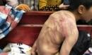 Bị bố mẹ đánh đập dã man, cậu bé mình chi chít vết roi, cởi trần vạ vật giữa trời âm độ