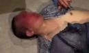 Người đàn ông nghi bắt cóc bé gái 14 tuổi bị đánh biến dạng mặt, gãy toàn bộ răng