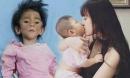 Cô gái nhận nuôi em bé suy dinh dưỡng: 'Lấy chồng vẫn đưa con theo'