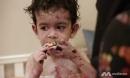 Cậu bé sinh ra với căn bệnh 'tồi tệ nhất thế giới', mỗi bước đi là một nỗi cực hình