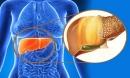 5 thói quen hủy hoại gan của bạn còn hơn uống rượu bia