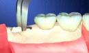 Từ vụ chết người vì nhổ răng: Những nguy cơ có thể xảy ra khi nhổ răng số 8