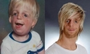 Bị bố mẹ bỏ rơi vì quá xấu xí, 33 năm sau cậu bé khiến cả thế giới ngỡ ngàng