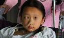 Bé 8 tuổi bị ung thư bàng quang, nếu nước tiểu của trẻ màu này cần đưa ngay vào viện
