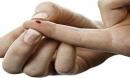Dấu hiệu nhận biết một người bị nhiễm virus HIV