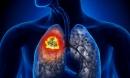 Căn bệnh ung thư phổi mà diễn viên Mai Phương mắc phải nguy hiểm thế nào? Lời cảnh báo cho cả người không hút thuốc