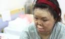 Sau 1 năm và hàng chục cuộc phẫu thuật, người vợ Hà Nội bị chồng thiêu hôm mùng 2 Tết, chỉ có 1% cơ hội sống sót đã 'hồi sinh'