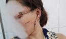 Thông tin mới nhất vụ chồng dùng dao rạch mặt, cắt gân chân 'vợ hờ' ở Bắc Giang