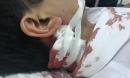 Bị bạn nhậu đánh vào mặt, phản đòn bằng nhát dao vào cổ