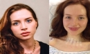 Nữ diễn viên trẻ vô tình bỏ qua bức ảnh tiết lộ dấu hiệu ung thư tuyến giáp rất rõ ràng, hãy cảnh giác!