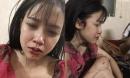 Cô gái xinh đẹp, bức ảnh môi bầm dập và dòng tâm sự 'cay đắng' thu hút 11.000 lượt chia sẻ