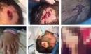 Bé 5 tuổi bị bạn gái của bố đập búa liên tiếp vào đầu nhưng không dám khóc, mách bố