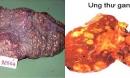 5 nguyên nhân khiến người Việt mắc và chết vì ung thư gan cao thứ 4 thế giới