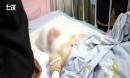 Bé gái 7 tuổi bỏng nặng vì mẹ đổ nước sôi vào người, hé lộ bi kịch gia đình