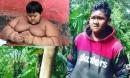 Sự biến đổi kinh ngạc của cậu bé béo nhất thế giới