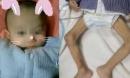 Bé sơ sinh chào đời 4,4kg nhưng sau một năm không ai nhận ra, nguyên nhân quá đáng sợ