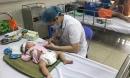 Bắt đầu nắng nóng nhiều trẻ viêm não biến chứng nặng nhập viện vì bố mẹ quên làm điều này