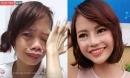 Cô gái 'xấu xúc phạm người nhìn' đến mức bị chồng ruồng bỏ sau gần 1 năm giờ ra sao?