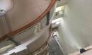 Bệnh nhân 67 tuổi nhảy lầu, được cứu nhờ vướng giàn lưới sắt