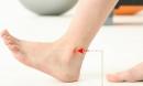 9 dấu hiệu ở chân chỉ ra bạn mắc bệnh nguy hiểm, chẳng thể coi thường