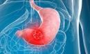 Người đàn ông 31 tuổi bị ung thư dạ dày do ăn thứ này thay cơm trong thời gian dài