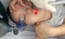 7 phút sinh tử cứu bé trai 21 tháng tuổi bị hóc thạch rau câu