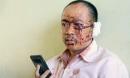 Nạn nhân xe Phương Trang: Ai cũng la hét, người văng khắp nơi