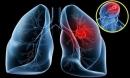 Mắc 4 bệnh ung thư, người phụ nữ vẫn sống khỏe mạnh
