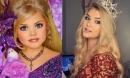 Hoa hậu nhí nước Mỹ bị 'chín ép' một thời: Tiêm botox và ăn kiêng mỗi ngày, sau 9 năm từ nhan sắc đến cuộc sống đều gây bất ngờ
