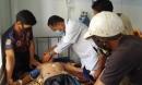 2 người chết, 1 người nguy kịch vì bị sét đánh trong lúc đi làm đồng