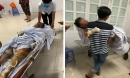 Khởi tố, bắt tạm giam nghi phạm phóng hỏa đốt nhà ở Phú Yên khiến 4 người trong gia đình bị bỏng nặng