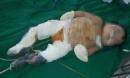 Bé 6 tháng tuổi bỏng nặng do ngã vào chậu than