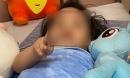 Bé gái 3 tuổi rơi từ tầng 12 dự kiến xuất viện hôm nay