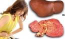 5 dấu hiệu cho biết bạn đang mắc bệnh suy gan giai đoạn nặng, cần đi khám gấp