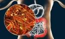 Người tuổi thọ ngắn thường có 3 bộ phận trong cơ thể luôn 'bẩn', mắc 1/3 cũng nguy hiểm