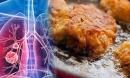 5 thực phẩm gây hại cho phổi còn hơn thuốc lá mà người Việt thích mê, số 1 già trẻ đều nghiền