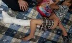 Vụ học sinh gãy xương đùi: Đã có kết luận ban đầu của cơ quan công an