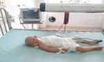 Bố mẹ mù lòa, con gái 16 tháng tuổi nguy kịch vì bị bỏng nước sôi