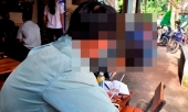 cong-an-tphcm-len-tieng-ve-nghi-an-dan-canh-de-cuop-hiep-tap-the-273577.html