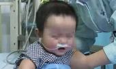 be-3-tuoi-chet-vi-suy-gan-do-cha-dai-dot-cho-con-uong-thu-rat-ki-tre-nho-310616.html