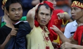 cdv-viet-nam-va-bong-ma-hooligan-malaysia-318373.html