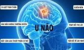 dau-hieu-nguy-hiem-canh-bao-can-benh-nhac-si-quoc-bao-dang-mac-phai-341940.html