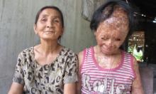 Bà nội cháu bé bị tạt axít muốn xin đôi mắt của tử tù Nguyễn Hữu Tình