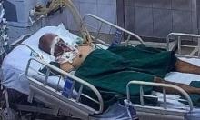 Bệnh nhân Covid-19 ở Hà Nội tiên lượng rất nặng, tổn thương phổi gần như toàn bộ