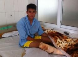 V-League 2014: Cầu thủ bị đạp gãy chân phải điều trị gần một năm