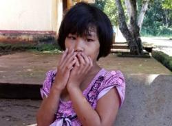 Bé gái bị mẹ ruột cắt gân, sang chấn thần kinh nghiêm trọng