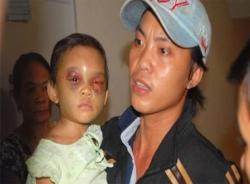 Vụ bé 4 tuổi bị đánh đập: Cha ruột bất ngờ xuất hiện ở bệnh viện