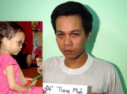 Người đánh đập bé 4 tuổi không phải là cha đẻ