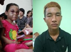 Từ chuyện Hào Anh đến bé 4 tuổi bị đánh đập và kẻ tốt... 'vô tâm'