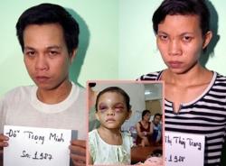 Ai được quyền nuôi bé gái 4 tuổi bị đánh biến dạng ở Bình Dương?